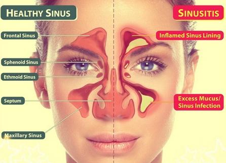 sinus3